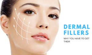 What are dermal fillers and why you have to get them?