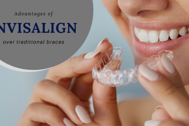 5 Advantages of Invisalign over traditional braces