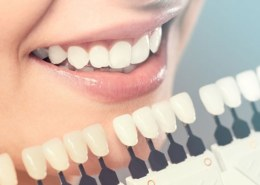 Few things to know before taking up the Invisalign procedure