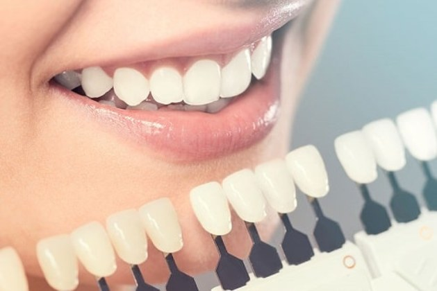 Top Ten Tips For A Healthy Mouth