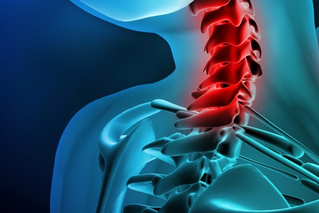 What are the common neck injuries? How can a solicitor help you?