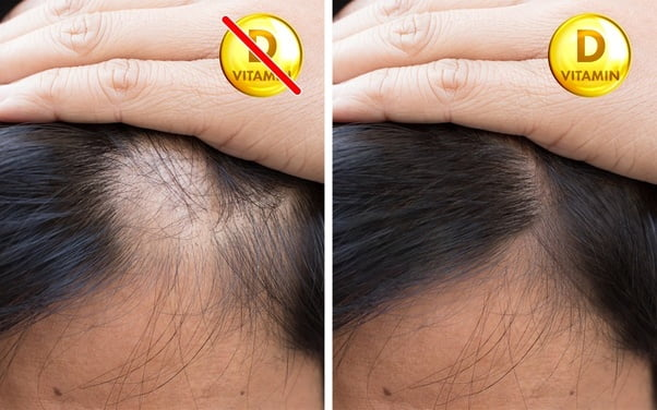 Is Hair Loss Due To Vitamin D Deficiency Reversible?