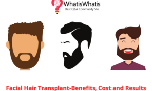 Facial Hair Transplant-Benefits, Cost and Results
