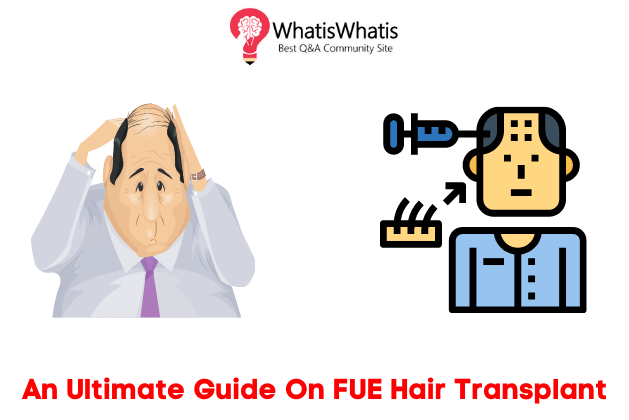 An Ultimate Guide On FUE Hair Transplant