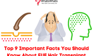 Top 9 Important Facts You Should Know About FUE Hair Transplant