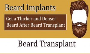 Beard Implants- Get a Thicker and Denser Beard After Beard Transplant