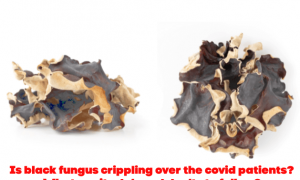 Is black fungus crippling over the covid patients? What are its do's and don'ts to follow?